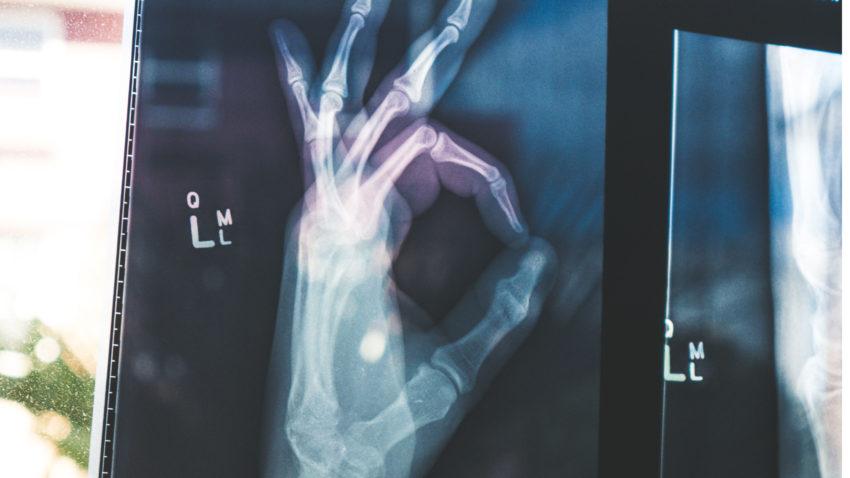 Hand röntgen